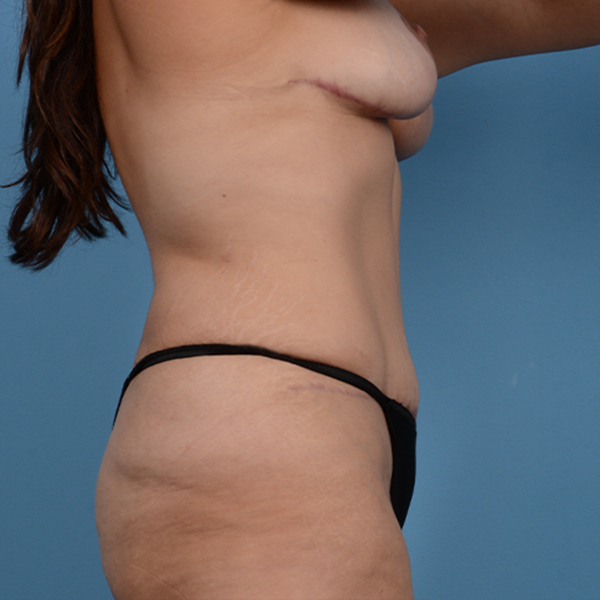 Mommy Makeover Gallery - Patient 37534979 - Image 6