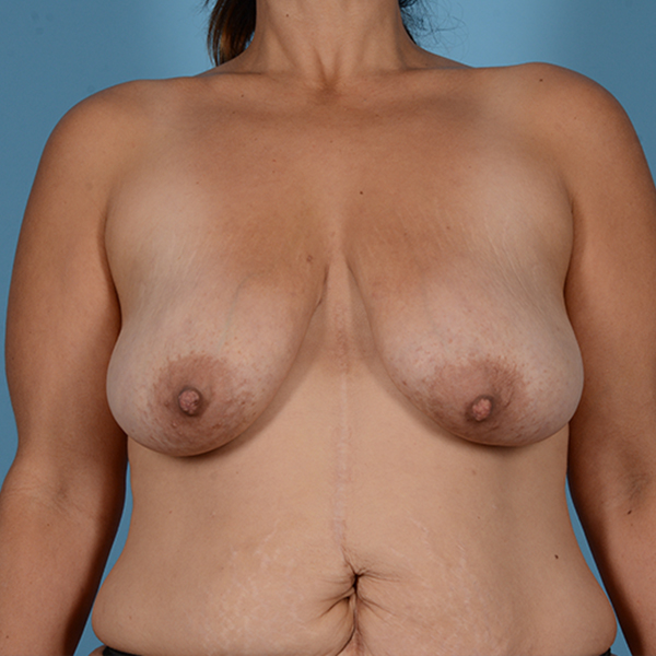 Mommy Makeover Gallery - Patient 37534979 - Image 7