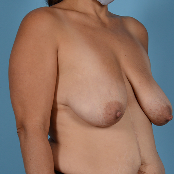 Mommy Makeover Gallery - Patient 37534979 - Image 9