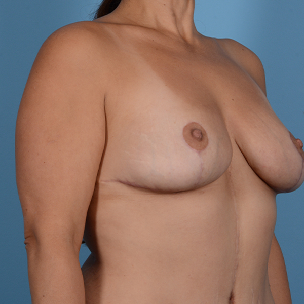 Mommy Makeover Gallery - Patient 37534979 - Image 10