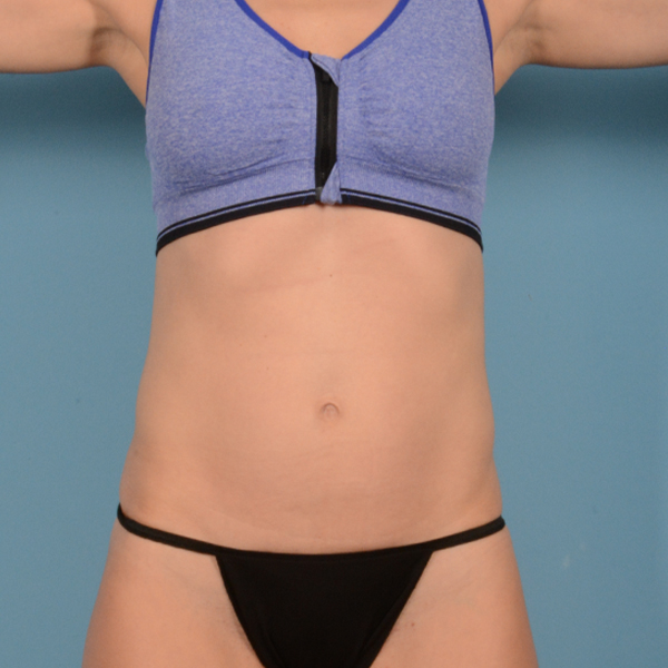 Tummy Tuck Gallery - Patient 37534987 - Image 1