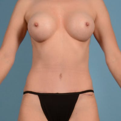 Tummy Tuck Gallery - Patient 37534987 - Image 2