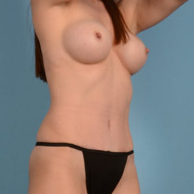 Tummy Tuck Gallery - Patient 37534987 - Image 4