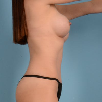 Tummy Tuck Gallery - Patient 37534987 - Image 6