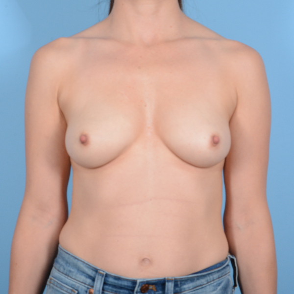 Breast Augmentation Gallery - Patient 37535003 - Image 1
