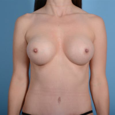 Breast Augmentation Gallery - Patient 37535003 - Image 2