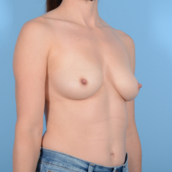 Breast Augmentation Gallery - Patient 37535003 - Image 3