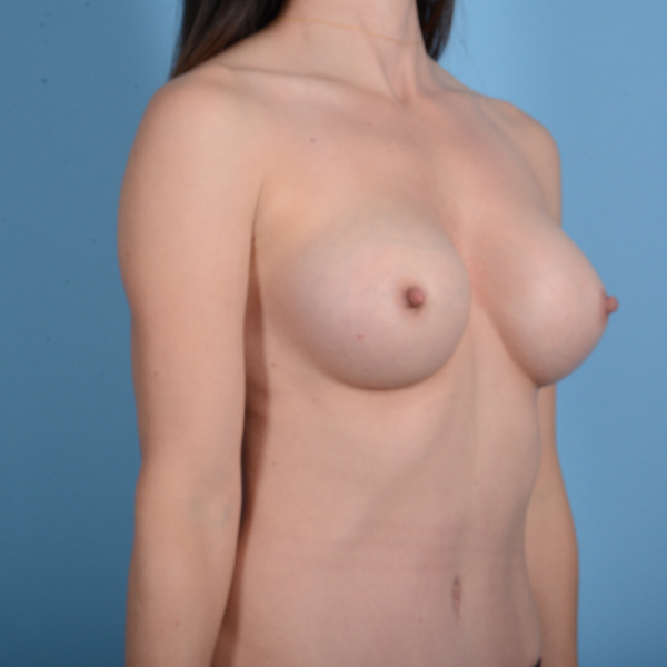 Breast Augmentation Gallery - Patient 37535003 - Image 4