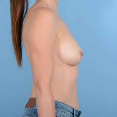 Breast Augmentation Gallery - Patient 37535003 - Image 5