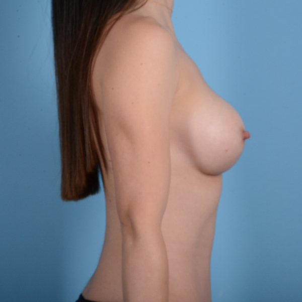 Breast Augmentation Gallery - Patient 37535003 - Image 6