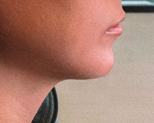 Chin Gallery - Patient 10380724 - Image 2