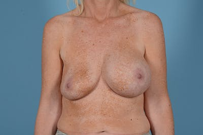 Breast Revision Gallery - Patient 44327008 - Image 1