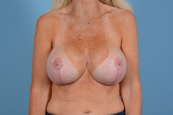 Breast Revision Gallery - Patient 44327008 - Image 2