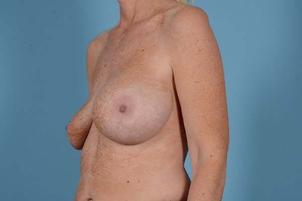 Breast Revision Gallery - Patient 44327008 - Image 3