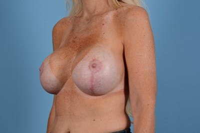 Breast Revision Gallery - Patient 44327008 - Image 4