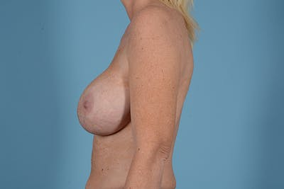 Breast Revision Gallery - Patient 44327008 - Image 5