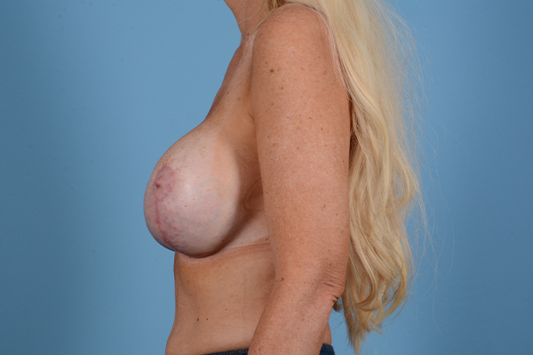 Breast Revision Gallery - Patient 44327008 - Image 6
