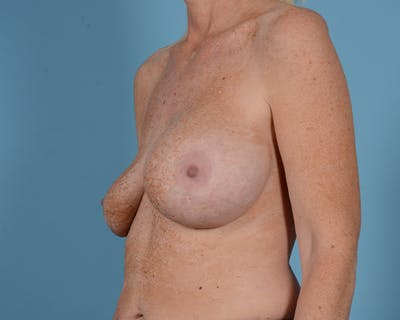 Breast Lift Gallery - Patient 44327459 - Image 3