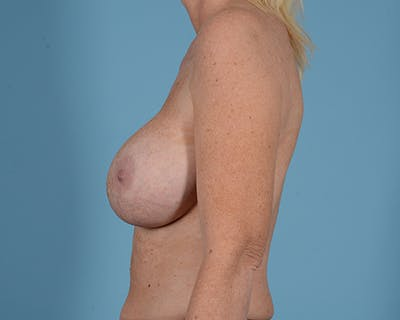 Breast Lift Gallery - Patient 44327459 - Image 5