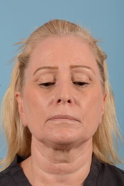 Facelift Gallery - Patient 44774608 - Image 1