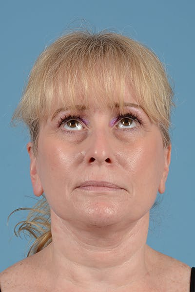 Facelift Gallery - Patient 44774608 - Image 2