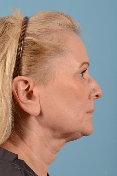 Facelift Gallery - Patient 44774608 - Image 5
