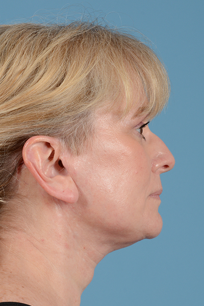 Facelift Gallery - Patient 44774608 - Image 6