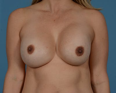 Breast Revision Gallery - Patient 45665022 - Image 1