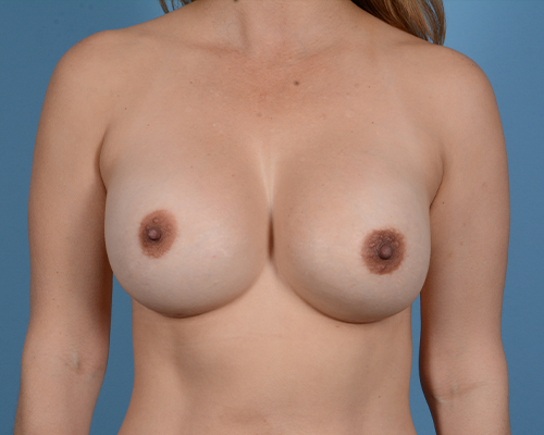 Breast Revision Gallery - Patient 45665022 - Image 2