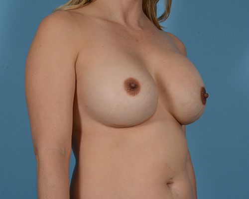 Breast Revision Gallery - Patient 45665022 - Image 3