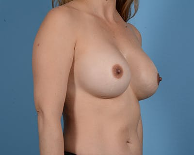 Breast Revision Gallery - Patient 45665022 - Image 4