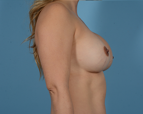Breast Revision Gallery - Patient 45665022 - Image 5