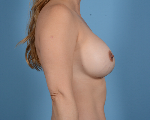 Breast Revision Gallery - Patient 45665022 - Image 6
