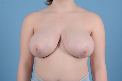 Breast Reduction with Lift Gallery - Patient 46966529 - Image 1