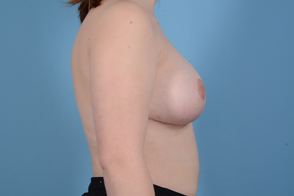 Breast Reduction with Lift Gallery - Patient 46966529 - Image 6