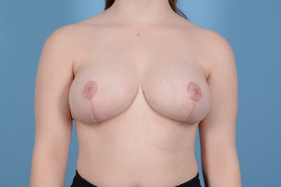 Breast Reduction with Lift Gallery - Patient 46966529 - Image 2