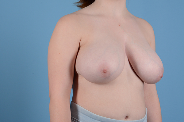 Breast Reduction with Lift Gallery - Patient 46966529 - Image 3