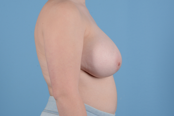 Breast Reduction with Lift Gallery - Patient 46966529 - Image 5