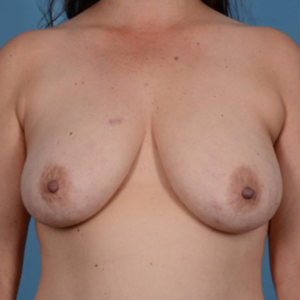 Breast Lift Gallery - Patient 46966982 - Image 1