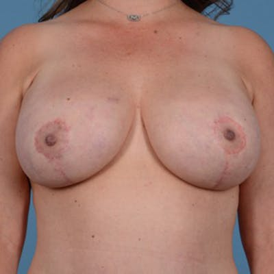 Breast Lift Gallery - Patient 46966982 - Image 2