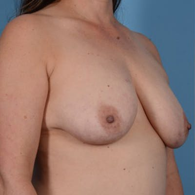 Breast Lift Gallery - Patient 46966982 - Image 3