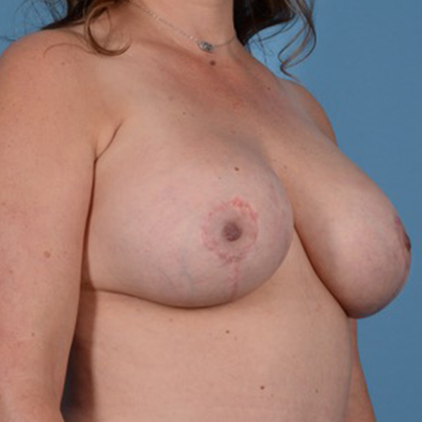 Breast Lift Gallery - Patient 46966982 - Image 4
