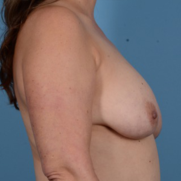 Breast Lift Gallery - Patient 46966982 - Image 5