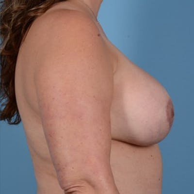 Breast Lift Gallery - Patient 46966982 - Image 6