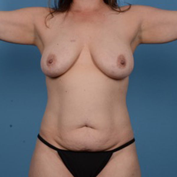 Mommy Makeover Gallery - Patient 46966978 - Image 1