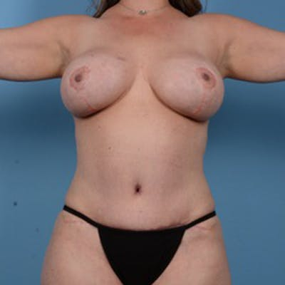 Mommy Makeover Gallery - Patient 46966978 - Image 2