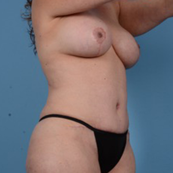 Mommy Makeover Gallery - Patient 46966978 - Image 4