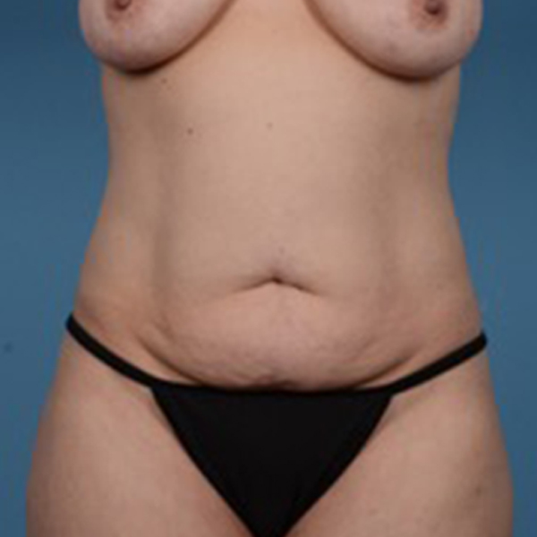 Liposuction Gallery - Patient 46966994 - Image 1