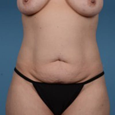 Tummy Tuck Gallery - Patient 46966995 - Image 1