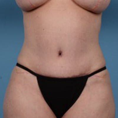 Tummy Tuck Gallery - Patient 46966995 - Image 2